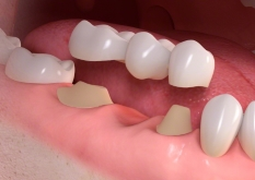 Teeth Bridges Noor Al Wasl Clinic Dubai