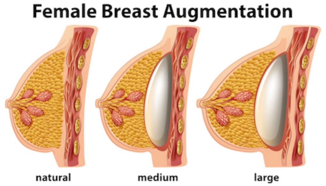 Breast Enlargement Surgery Dubai