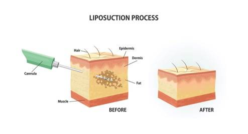 Liposuction Noor Al Wasl Clinic Dubai