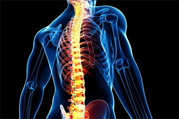 Minimally Invasive Spine Surgery Dubai