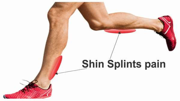 Shin Splints Orthopedics Noor Al Wasl Clinic Dubai